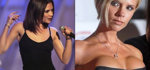 13-Most horrible loking celebrity breast implants