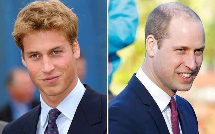 Prince William then and now